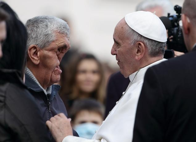 pope-and-disfigured-man